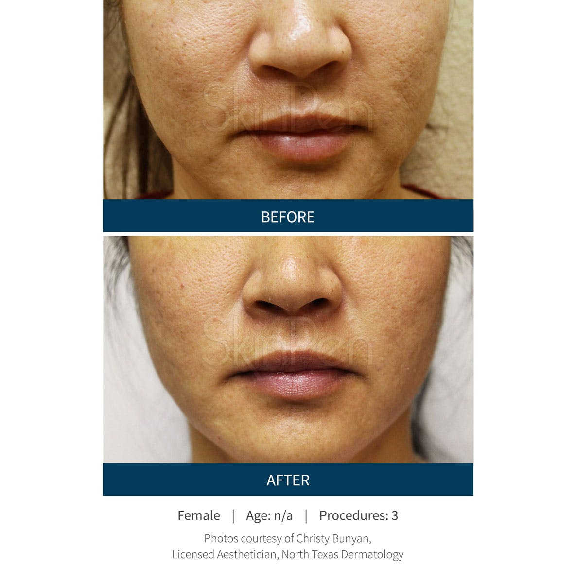 SkinPen Microneedling Gallery - Patient 5698315 - Image 1