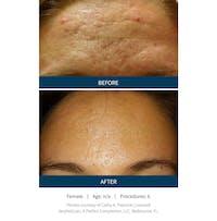 SkinPen Microneedling Gallery - Patient 5698313 - Image 1