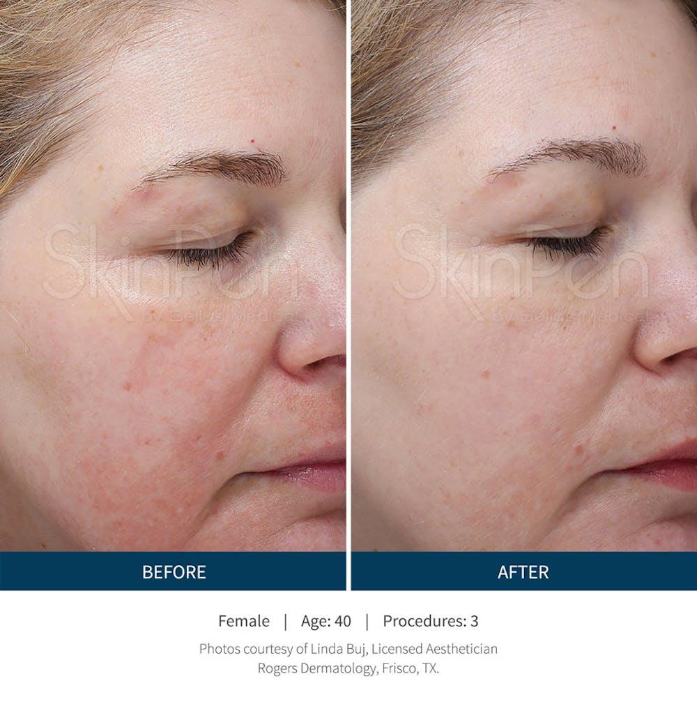 SkinPen Microneedling Gallery - Patient 5698314 - Image 1