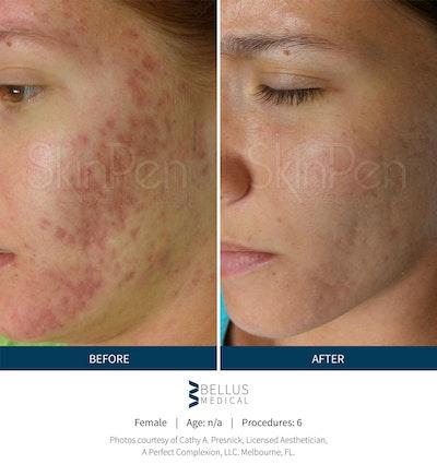 SkinPen Microneedling Gallery - Patient 5698312 - Image 1