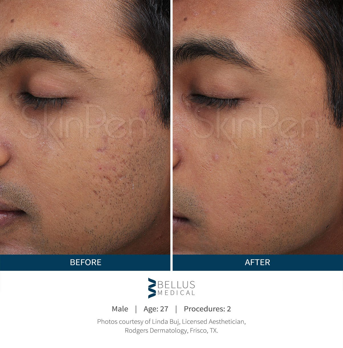 SkinPen Microneedling Gallery - Patient 5698311 - Image 1