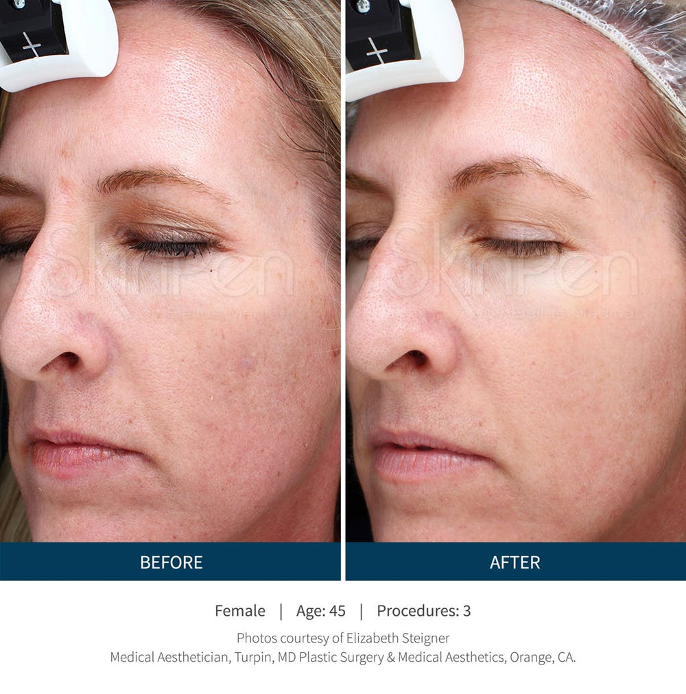 SkinPen Microneedling with PRP
