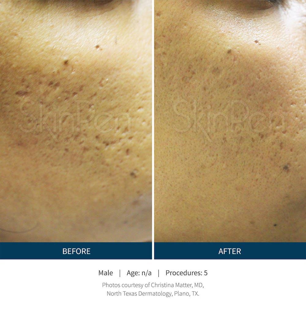 SkinPen Microneedling Gallery - Patient 5698319 - Image 1