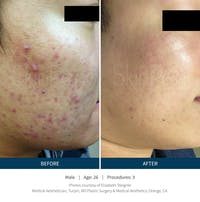 SkinPen Microneedling Gallery - Patient 5698318 - Image 1