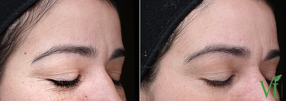 Anti Aging Gallery - Patient 5640643 - Image 1