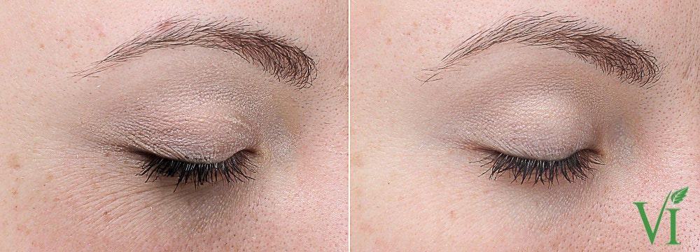 Anti Aging Gallery - Patient 5640654 - Image 1