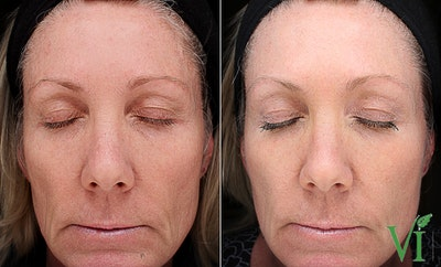 Anti Aging Gallery - Patient 5640655 - Image 1