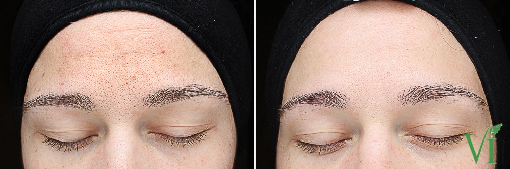 Anti Aging Gallery - Patient 5640656 - Image 1