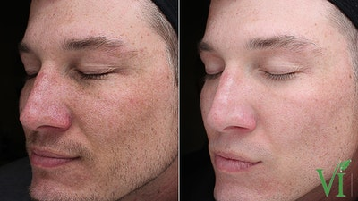 Anti Aging Gallery - Patient 5640662 - Image 1