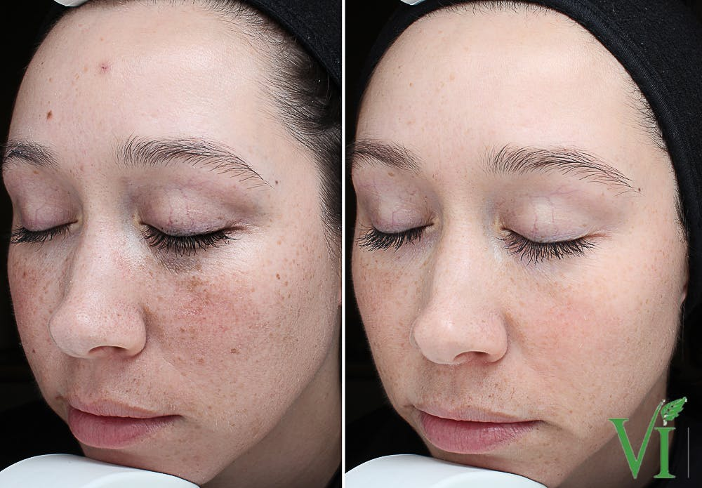 Anti Aging Gallery - Patient 5640688 - Image 1