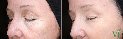 Anti Aging Gallery - Patient 5640693 - Image 1