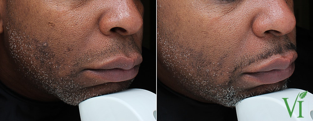 Pigmentation Gallery - Patient 5640706 - Image 1