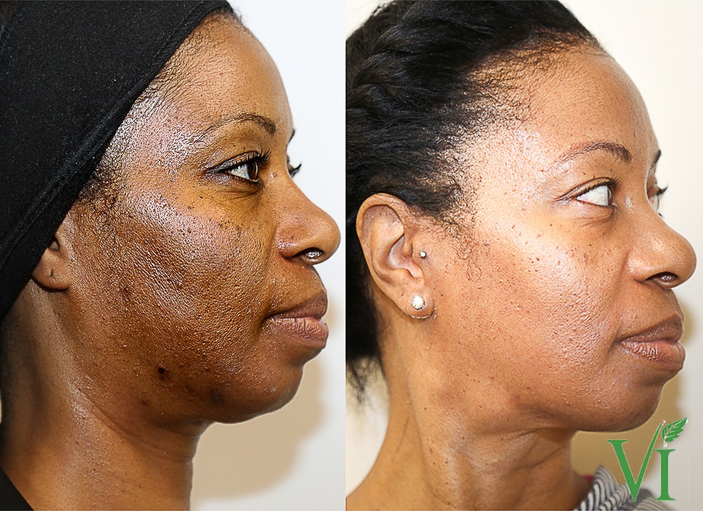 Pigmentation Gallery - Patient 5640708 - Image 1