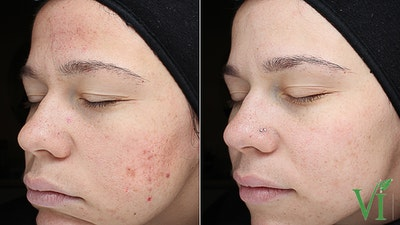 Acne Gallery - Patient 5640906 - Image 1