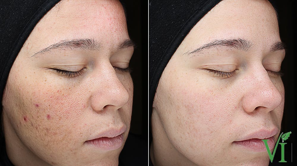 Acne Gallery - Patient 5640906 - Image 2