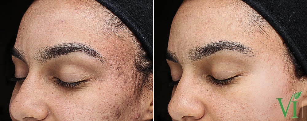 Acne Gallery - Patient 5640907 - Image 1