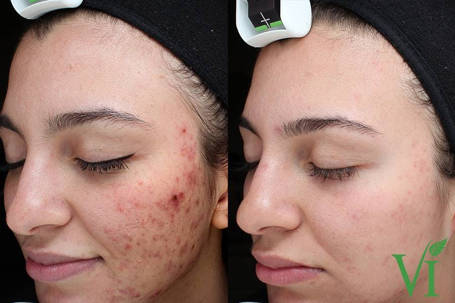 Acne Gallery - Patient 5640907 - Image 2