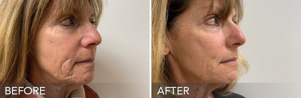 Dermal Fillers Gallery - Patient 15239598 - Image 1