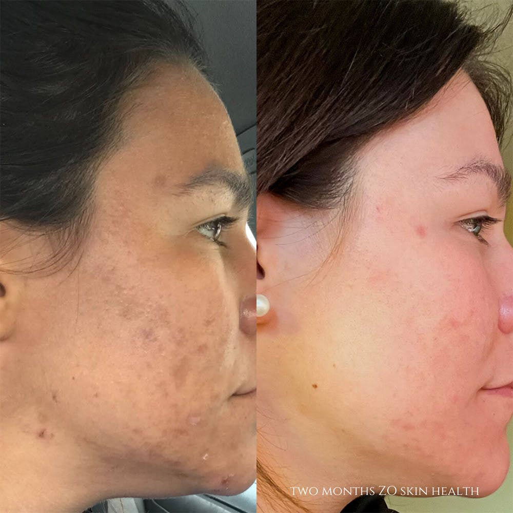 ZO Skin Health Gallery - Patient 19056409 - Image 1