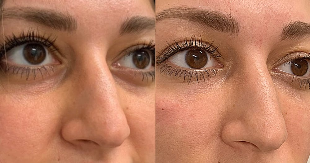 Dermal Fillers Gallery - Patient 19339303 - Image 1