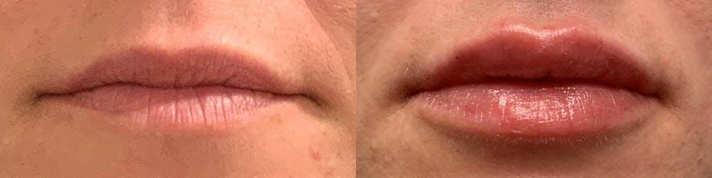Lip Enhancement Gallery - Patient 19056396 - Image 1