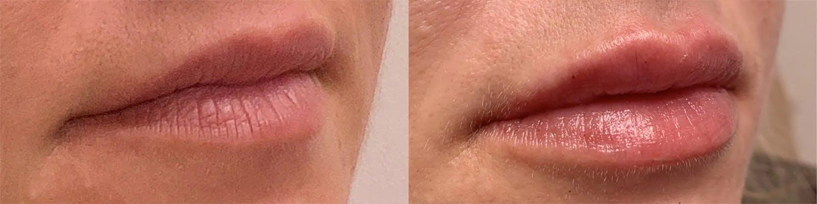 Lip Enhancement Gallery - Patient 20050587 - Image 1