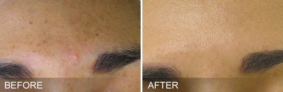 Hydrafacial Gallery - Patient 31172703 - Image 1