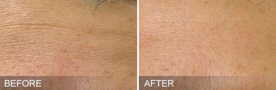 Hydrafacial Gallery - Patient 31172719 - Image 1