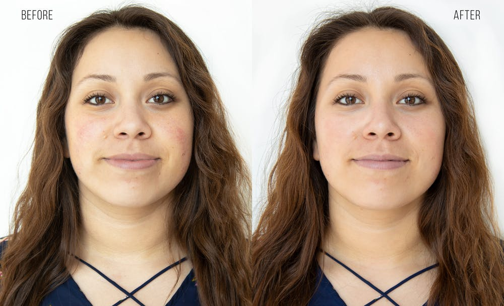 Hydrafacial Gallery - Patient 31172813 - Image 1