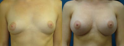 Breast Augmentation Gallery - Patient 5681434 - Image 1