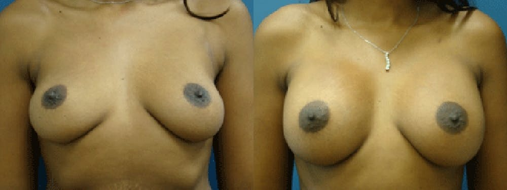 Breast Augmentation Gallery - Patient 5681435 - Image 1