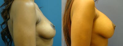 Breast Augmentation Gallery - Patient 5681436 - Image 1