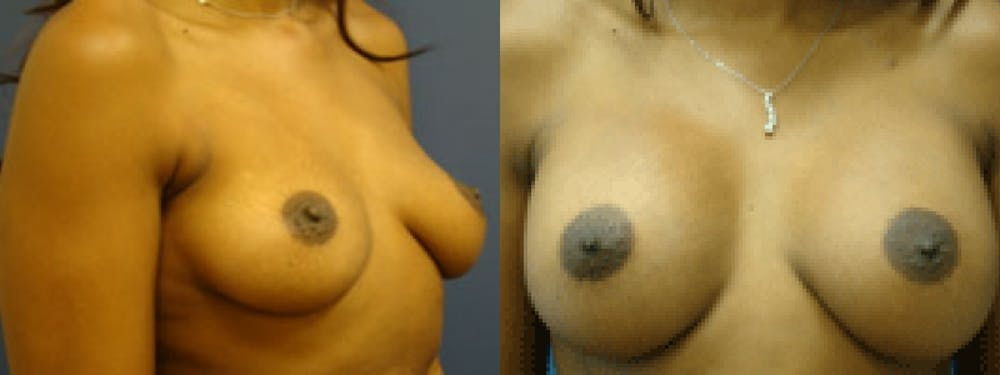 Breast Augmentation Gallery - Patient 5681437 - Image 1