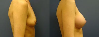 Breast Augmentation Gallery - Patient 5681438 - Image 1