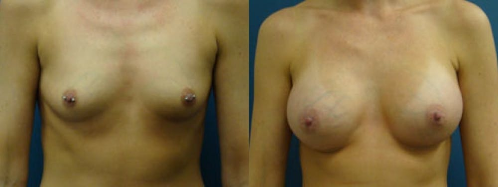 Breast Augmentation Gallery - Patient 5681439 - Image 1