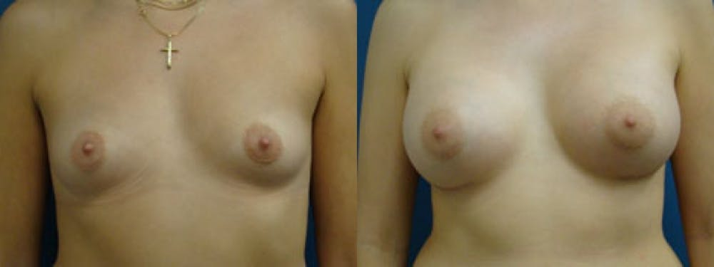 Breast Augmentation Gallery - Patient 5681440 - Image 1