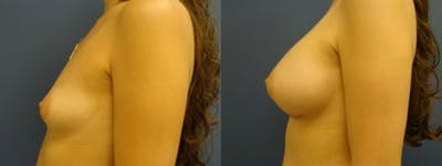 Breast Augmentation Gallery - Patient 5681441 - Image 1