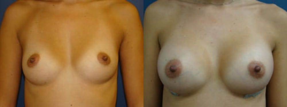 Breast Augmentation Gallery - Patient 5681442 - Image 1