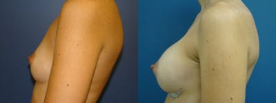 Breast Augmentation Gallery - Patient 5681443 - Image 1