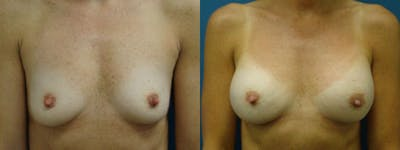 Breast Augmentation Gallery - Patient 5681444 - Image 11