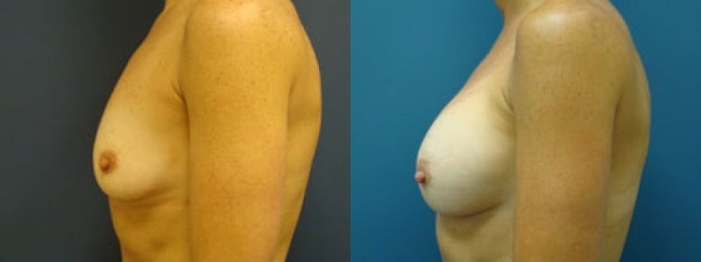 Breast Augmentation Gallery - Patient 5681445 - Image 1