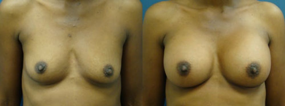 Breast Augmentation Gallery - Patient 5681446 - Image 1