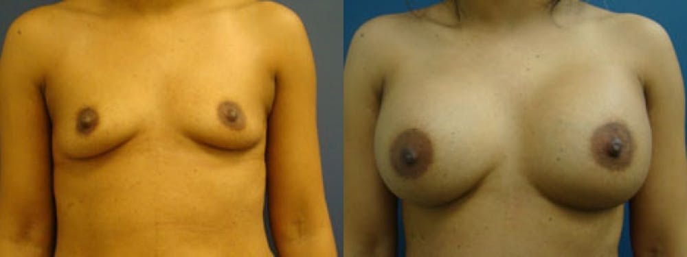 Breast Augmentation Gallery - Patient 5681447 - Image 1