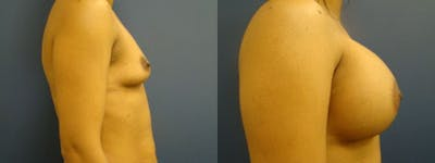 Breast Augmentation Gallery - Patient 5681448 - Image 1