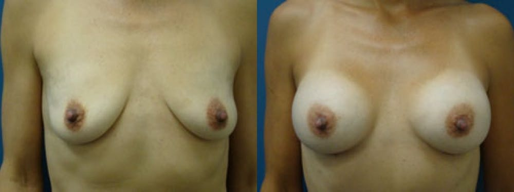 Breast Augmentation Gallery - Patient 5681449 - Image 1