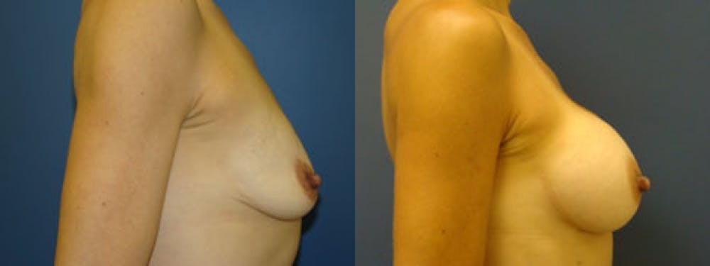 Breast Augmentation Gallery - Patient 5681450 - Image 1