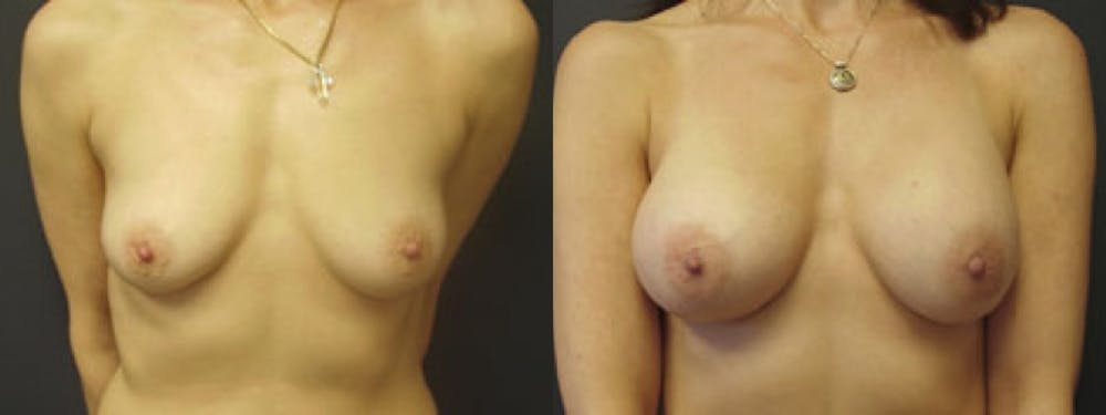 Breast Augmentation Gallery - Patient 5681451 - Image 1