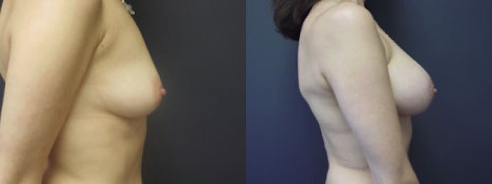 Breast Augmentation Gallery - Patient 5681452 - Image 1