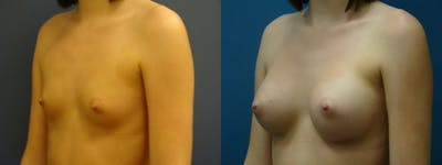 Breast Augmentation Gallery - Patient 5681453 - Image 1