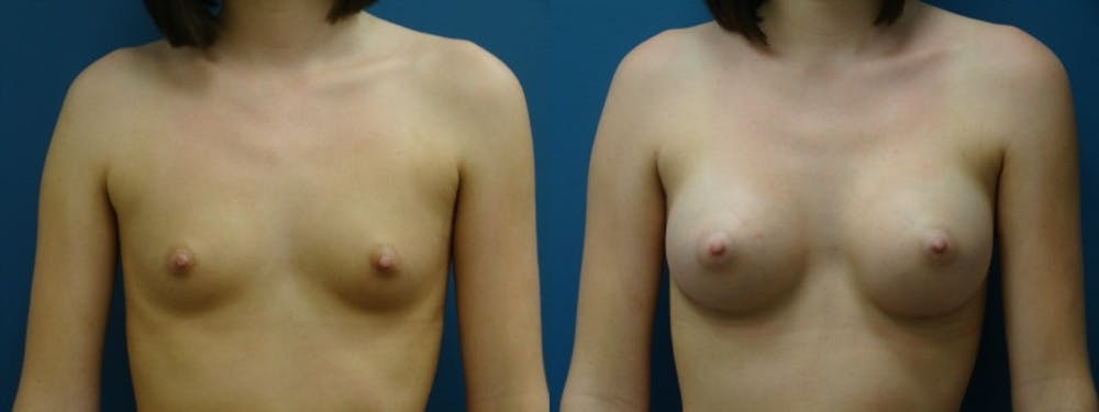 Breast Augmentation Gallery - Patient 5681454 - Image 1